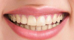 photo-before-teeth-whitening