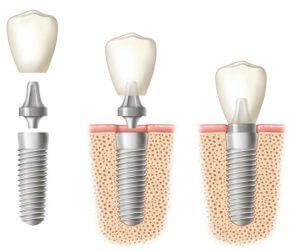 drawing-of-dental-implant