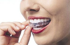 photo-of-invisalign