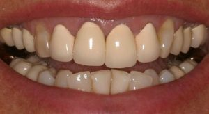 porcelain-crowns-before