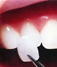 photo-of-thin-porcelain-veneer
