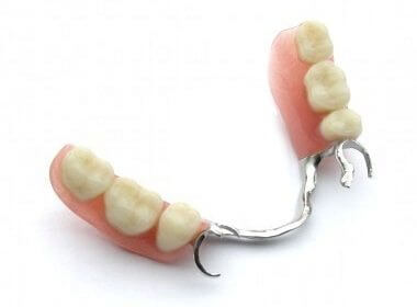 removable partial denture with a metal framework