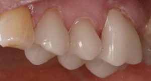 photo of three teeth fitted with cerec crowns