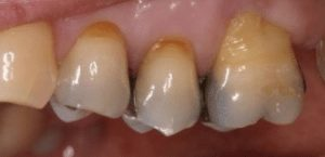 photo of three teeth that are filled with silver amalgam fillings before they are replaced with cerec crowns