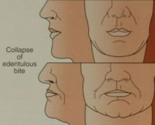 diagram-of-facial-collapse