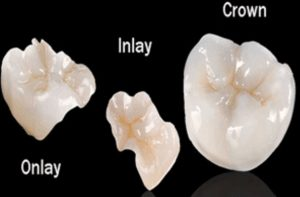 photo-of-porcelain-onlays-and-crowns