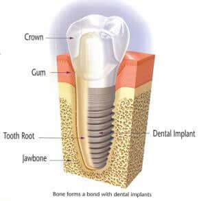 diagram of a dental implant in bone
