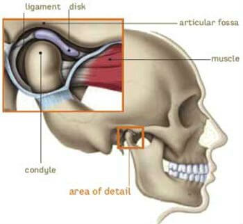 A drawing of the skull with an enlarged TMJ or temporomandibular joint shows how the condyle, soft disk, ligament, and muscle fit together in the articular fossa.