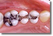 Amalgam fillings loaded with mercury