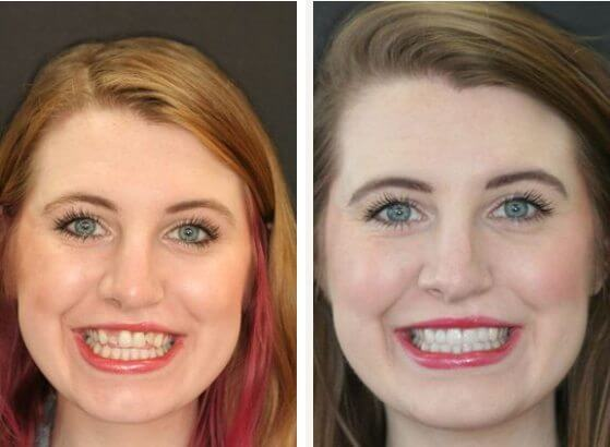 a before and after picture of a smile makeover done by Dr. Dennis