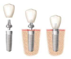 dental implant diagram showing three examples with the implant crown being placed on the implants