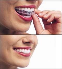 Two images one on top of the other with a woman putting in Invisalign aligners