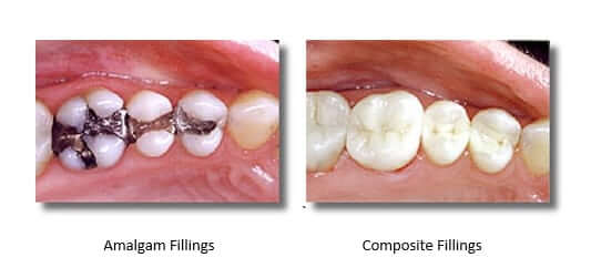 Left image: silver amalgam filling. Right Image: mercury-free composite filling