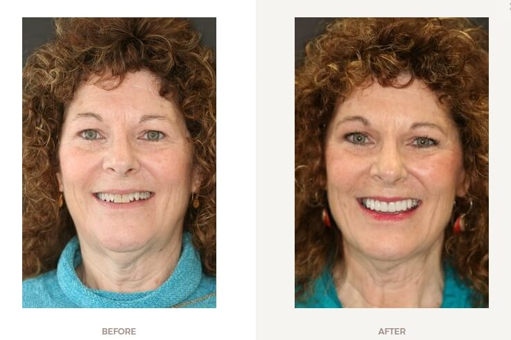 before and after of a smile makeover
