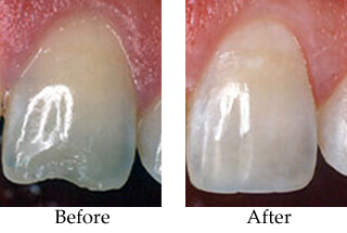 Before-and-after photos of a chipped central incisor tooth; for information on cosmetic dentistry from Portage, MI female dentist Dr. Susan Dennis.