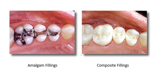 amalgam filling compared to mercury-free filling