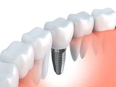 an image of a dental implant placed between two teeth