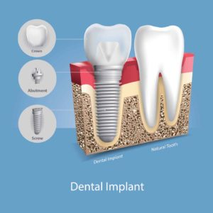 dental implant next to a natural tooth