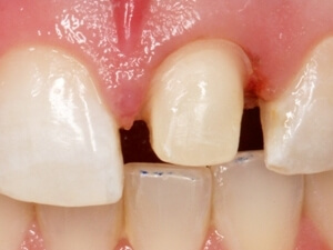 tooth prepared for a porcelain crown